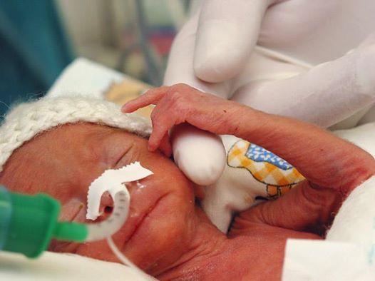 Opieka stymulacja i terapia rozwojowa w oddz. neonatologicznych